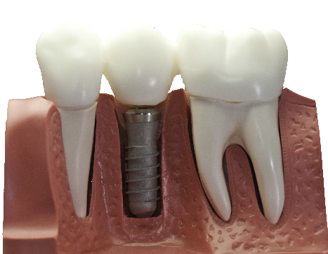 implants at perfect smiles moore ok
