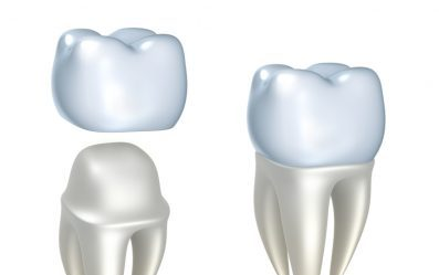 cerec same day crowns perfect smiles moore ok